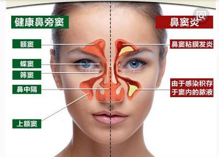 鼻竇炎,過敏,感冒怎麼分?圖解鼻竇發炎位置與癥狀讓你更清楚 - 每日頭條
