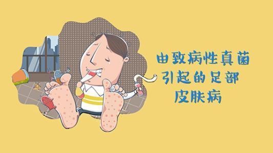 中醫:腳氣分為干腳氣和濕腳氣。濕腳氣又能細分為不同類型! - 每日頭條