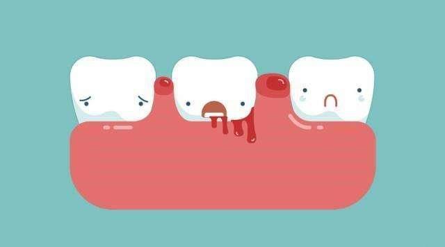 牙齦出血、萎縮問題如何解決?不妨試試新方法:健齒口含精油! - 每日頭條