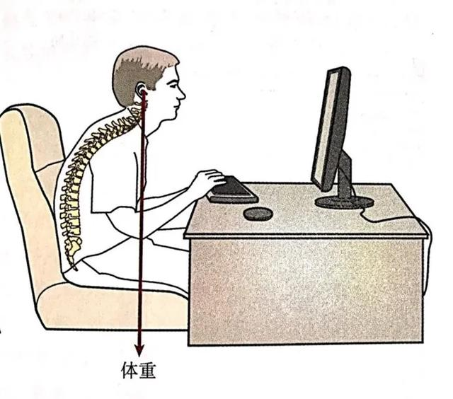 出現頸肩痛就是得了頸椎病嗎? - 每日頭條