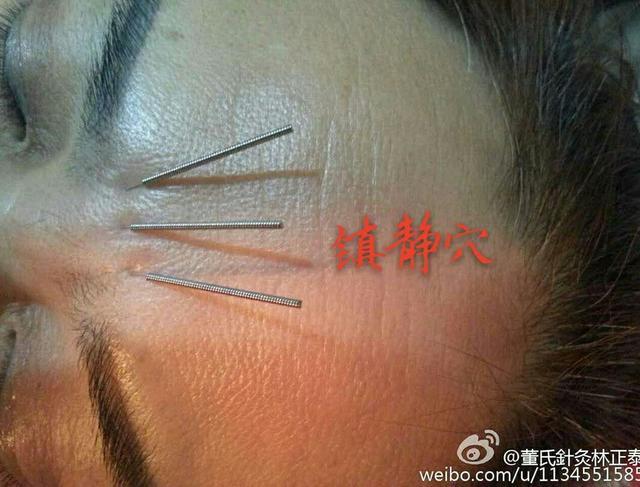 董氏針灸常用穴位圖 - 每日頭條