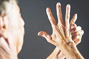你了解類風濕關節炎嗎?你是否也犯過以下類風濕關節炎的幾大誤區 - 每日頭條