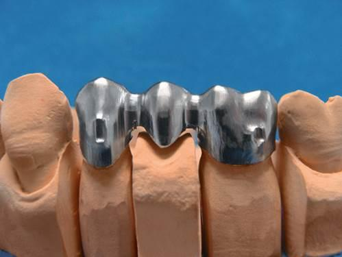 3D列印金屬材料之鎳基合金和鈷鉻合金 - 每日頭條