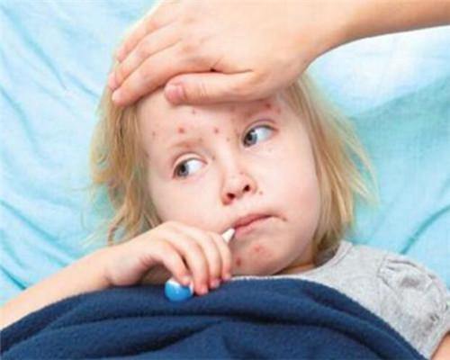 寶媽你家孩子打水痘疫苗了嗎?注意:寶寶長水痘不能吃這些食物! - 每日頭條