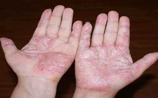 手脫皮不只是因為乾燥 可能是這個病引起的 - 每日頭條
