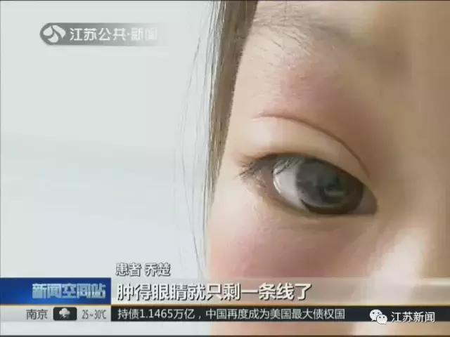 游泳回來,9歲女童眼睛竟腫成一條線,罪魁禍首原來是TA! - 每日頭條