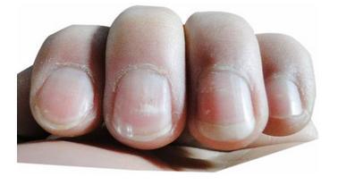 指甲有白點不只是缺鋅,有這個癥狀秒變肝病,男性則是腎虛 - 每日頭條