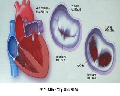 「心臟瓣膜病」拿掉!還是修復!是影響你術後還能活幾年的大事! - 每日頭條