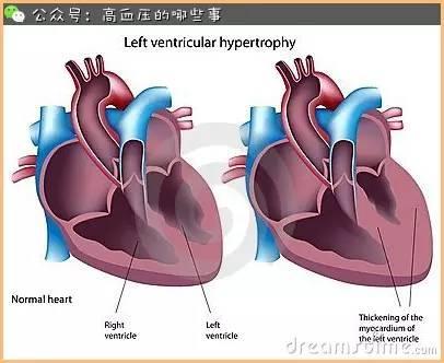 血壓不控制也能引起心臟病 - 每日頭條