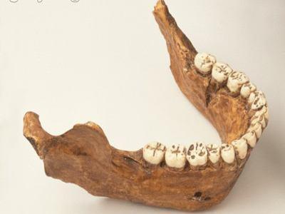 頜骨疾病不要錯當成牙疼! - 每日頭條