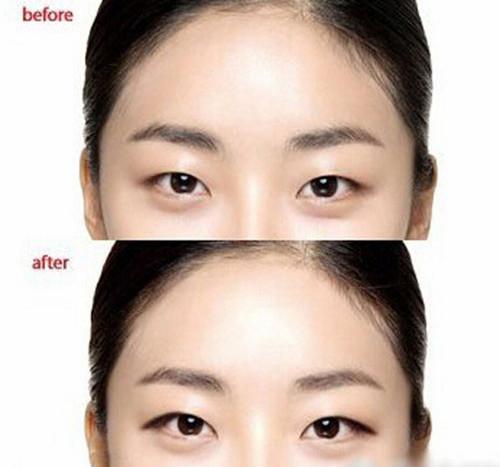 雙眼皮、單眼皮、下垂眼?各眼型適合哪種眼線? - 每日頭條