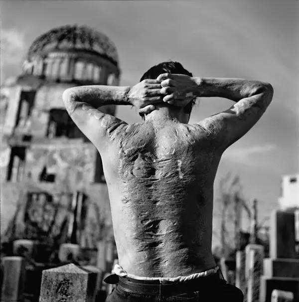 日本原子彈爆炸產生的核輻射影響有多大?倖存者每天都生不如死 - 每日頭條