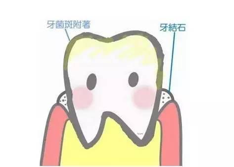 你真的懂得刷牙嗎?牙醫是這麼用牙膏的…… - 每日頭條