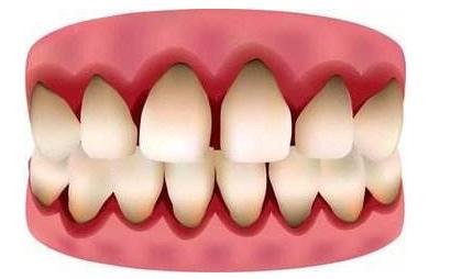 牙齦腫痛怎麼進行治療? - 每日頭條