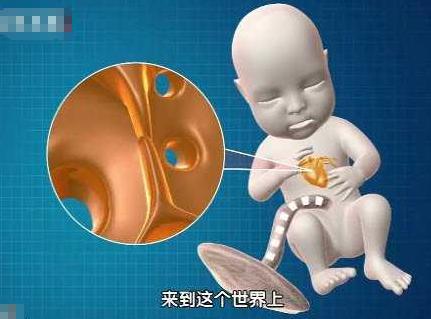 寶寶卵圓孔未閉會導致先天性心臟異常。準媽要如何預防卵圓孔未閉 - 每日頭條
