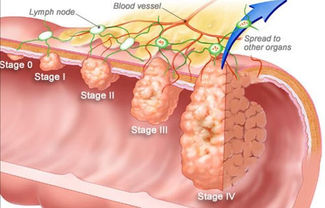 直腸癌術後2年複查正常。復發幾率還有多大?醫生跟您算一算 - 每日頭條