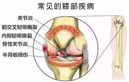 骨科醫生:膝蓋積水(積液)要怎麼辦?這篇文全說透了 - 每日頭條