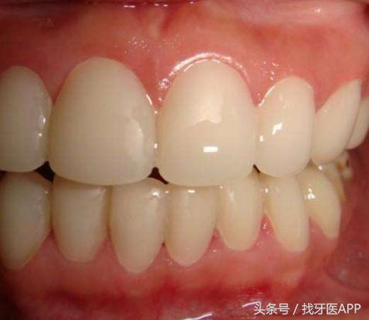 四環素牙危害大 四環素牙美白牙齒首選這三個方法。安全又高效 - 每日頭條