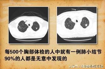 很多人體檢發現了肺小結節。離癌有多遠? - 每日頭條