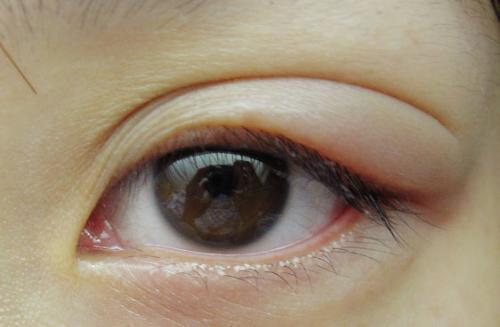 眼睛為什麼會長針眼?針眼如何治療 - 每日頭條