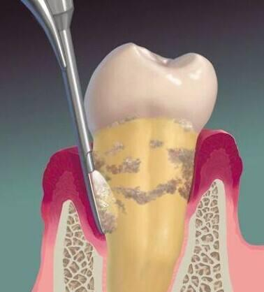 為什麼有些洗牙要把牙齦翻開洗? - 每日頭條