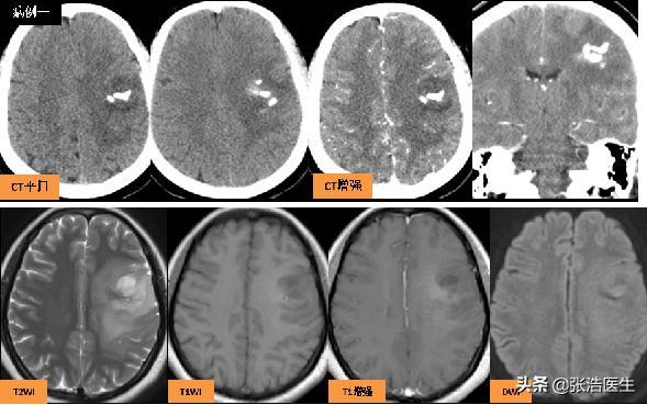 神經系統MRI影像學習:膠質母細胞瘤(顱腦惡性腫瘤) - 每日頭條