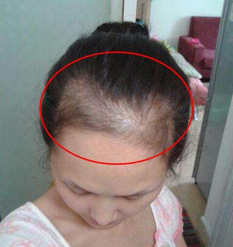 掉發嚴重與這些「壞習慣」有關。防脫髮。就要做到這幾點 - 每日頭條