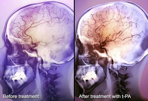 9成腦卒中可避免,知道這些能救命…… - 每日頭條