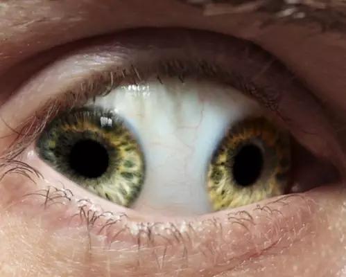 「邪眼」雙瞳探秘 - 每日頭條