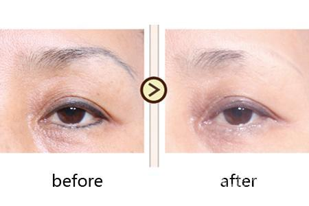紋繡常識:洗眉之前需要了解的知識 - 每日頭條