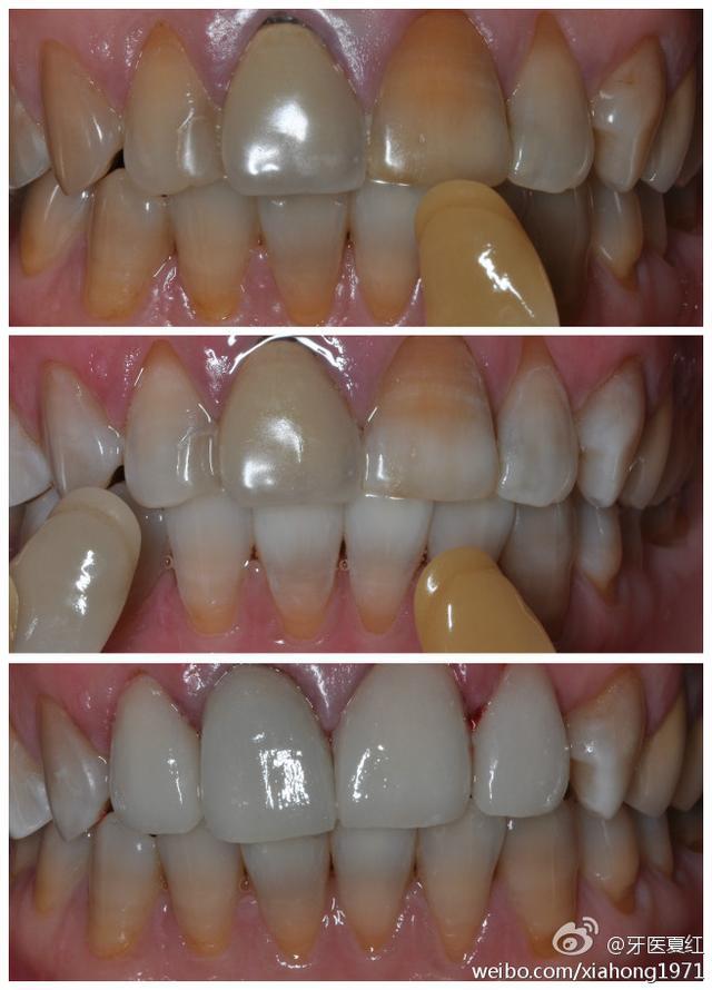 四環素牙的美麗蛻變 - 每日頭條