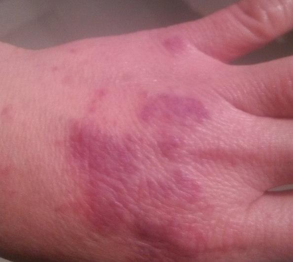 手上出現這些「小紅斑」竟是肝癌 - 每日頭條