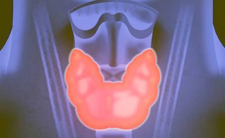 甲狀腺癌的前期癥狀有哪些?如何治? - 每日頭條