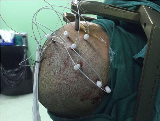 癲癇治療新希望——SEEG癲癇診療技術 - 每日頭條