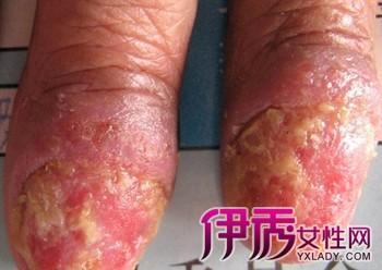 皮膚病圖片大全:皮膚病的種類辨別 - 每日頭條