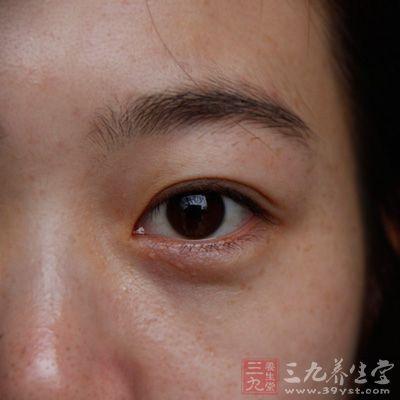 教你幾招消除眼睛血絲的方法 - 每日頭條