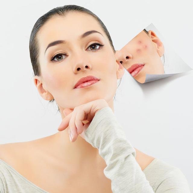 臉頰兩側長痘痘的原因及改善方法 - 每日頭條