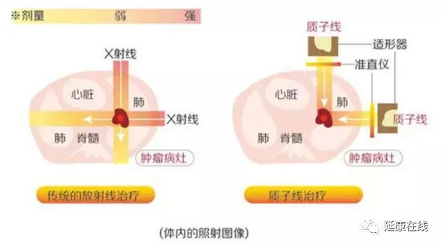 重離子質子治療與常規放療的比較 - 每日頭條