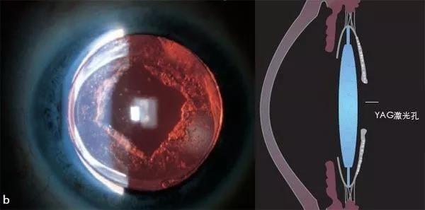 一附院眼科 |後發性白內障?YAG雷射帶你閱天下 - 每日頭條