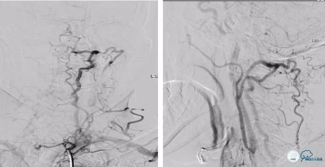 鎖骨下動脈閉塞伴頸總動脈重度狹窄介入治療一例 - 每日頭條