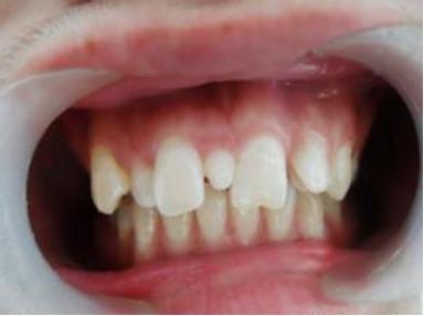 孩子多長了顆牙怎麼辦?—306醫院6.1科普(5) - 每日頭條