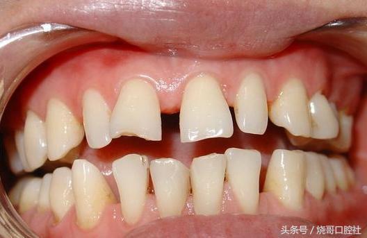 28歲出現牙齦萎縮,這是怎麼回事? - 每日頭條