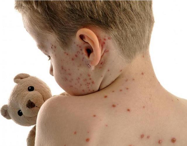 「提醒」寶寶七種疹子要分清,可別用錯藥! - 每日頭條