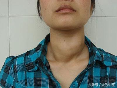 甲亢的中醫診斷及針灸治療 - 每日頭條