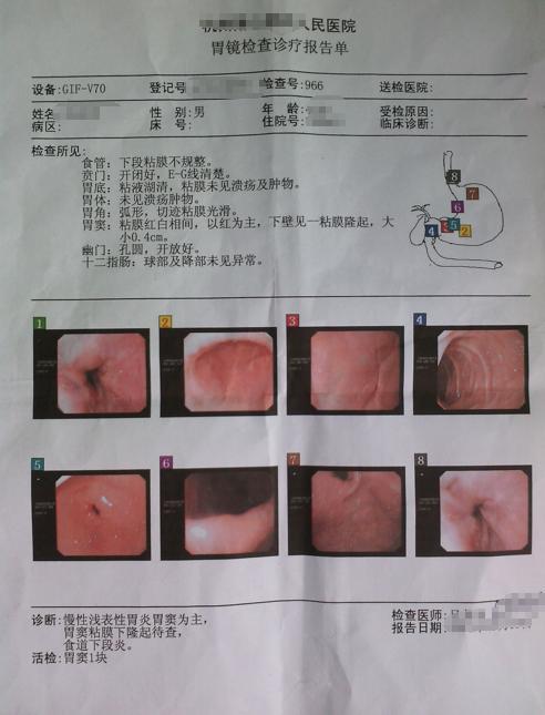 胃炎,胃潰瘍,感染幽門螺桿菌,3分鐘看懂胃鏡檢查報告,請收好 - 每日頭條