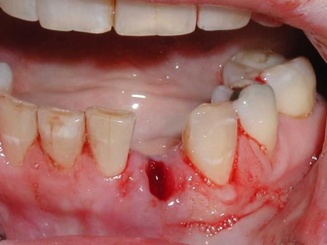 拔完牙的牙洞是怎麼消失的?大多數人都忘記了 - 每日頭條
