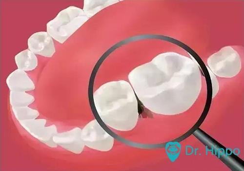 經常塞牙是什麼原因造成的? - 每日頭條
