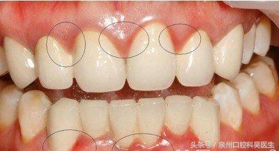 得了牙周炎該怎麼辦? - 每日頭條