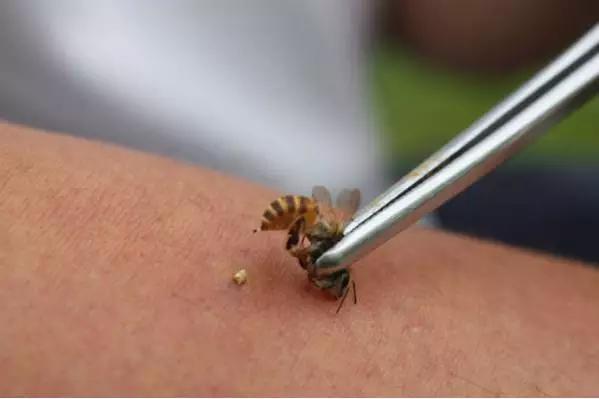 小小蜜蜂「針」神奇,改善體質祛頑疾 - 每日頭條