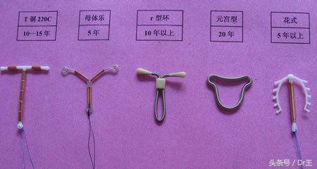 婦女雙子宮,體裏面卻還裝了二個避孕器! - 每日頭條